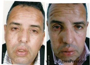 صورتان للمواطن  محمد شاهر بعد تعنيفه و ضربه