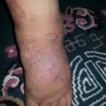 مصابة بمرض عضال في رجلها تناشد المحسنين