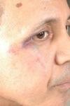 محاولة قتل فاعل حقوقي من طرف طبيب جراح و اعتدائه على شاهد في النازلة