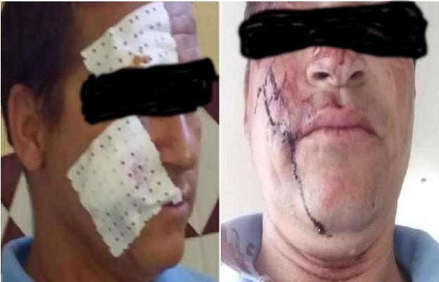 نقل مفوض قضائي إلى مستعجلات مستشفى ابن طفيل لهذا السبب